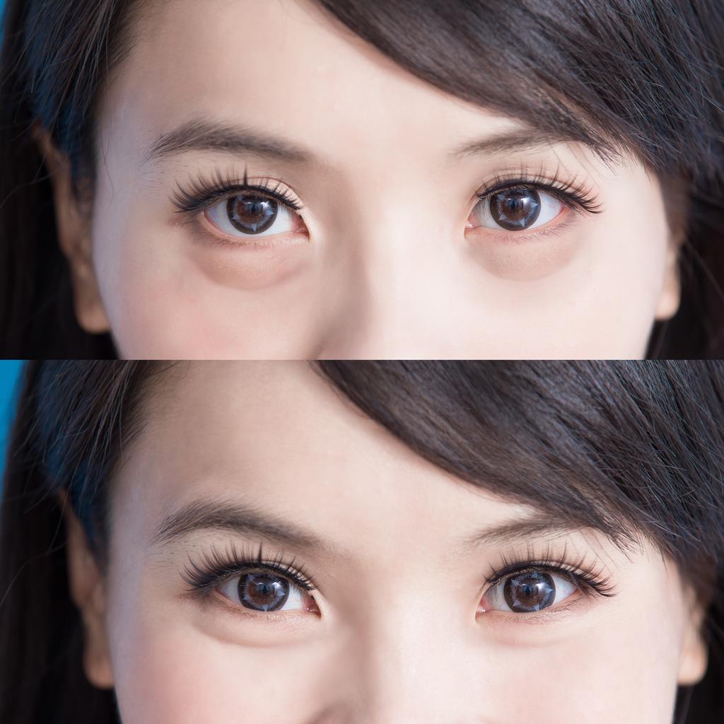 eye bag removal surgery